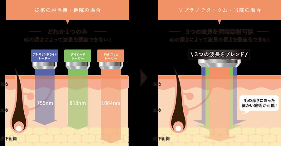 照射レーザー、照射方式の特徴