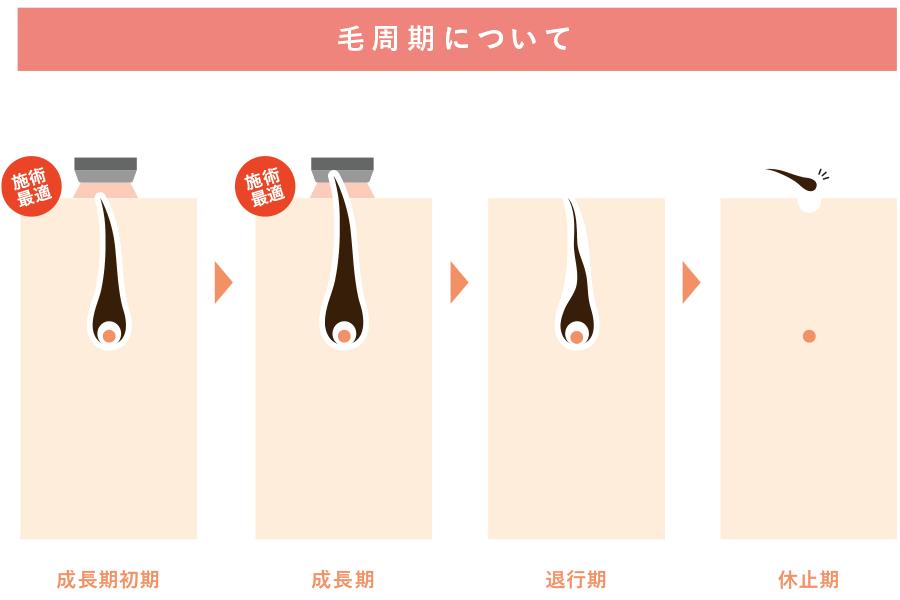 毛周期とは?脱毛との関係性。施術周期について