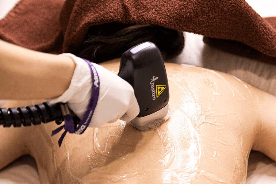 医療脱毛で使用するレーザー機器の種類とそれぞれの効果について